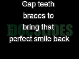 Gap teeth braces to bring that perfect smile back