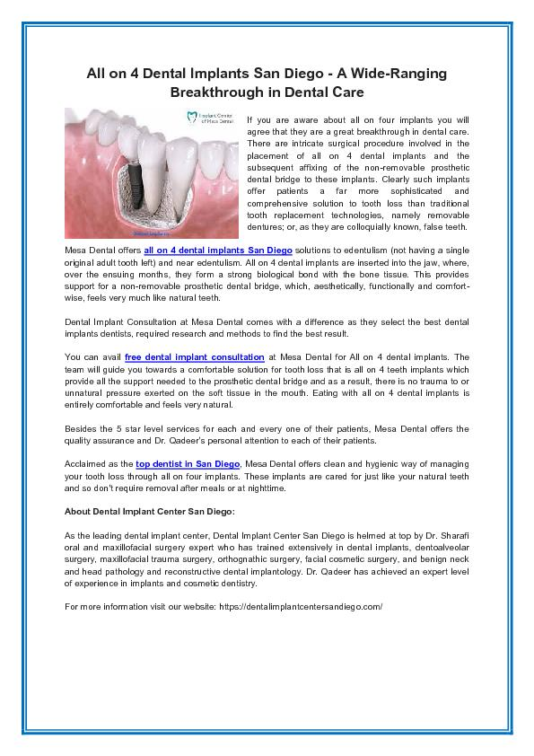 All on 4 Dental Implants San Diego