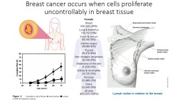 Breast cancer occurs when cells proliferate uncontrollably in breast tissue