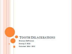 Tooth Dilacerations Bianca