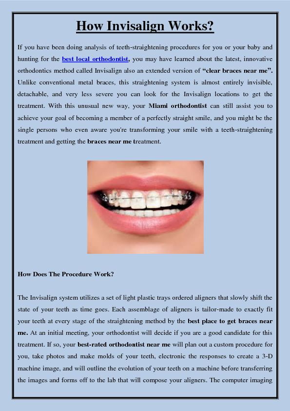 How Invisalign Works?