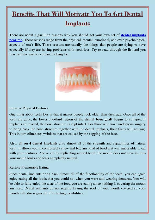 Benefits That Will Motivate You To Get Dental Implants