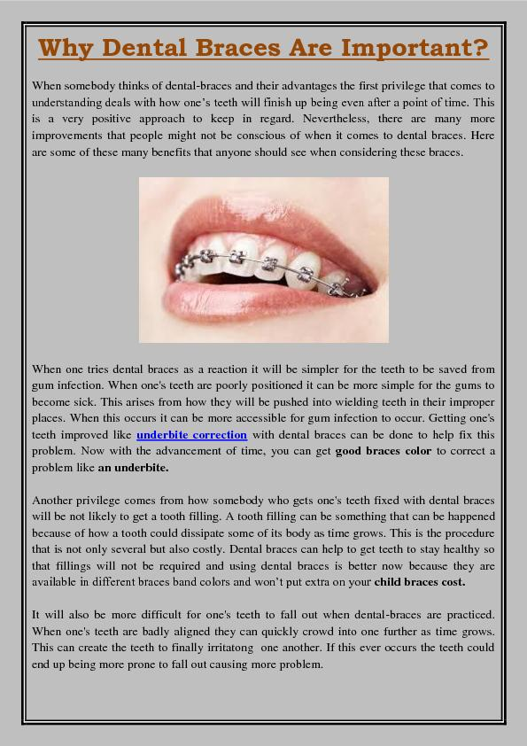 Why Dental Braces Are Important?