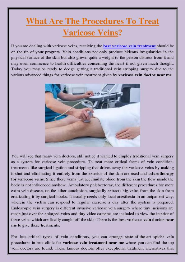 What Are The Procedures To Treat Varicose Veins?