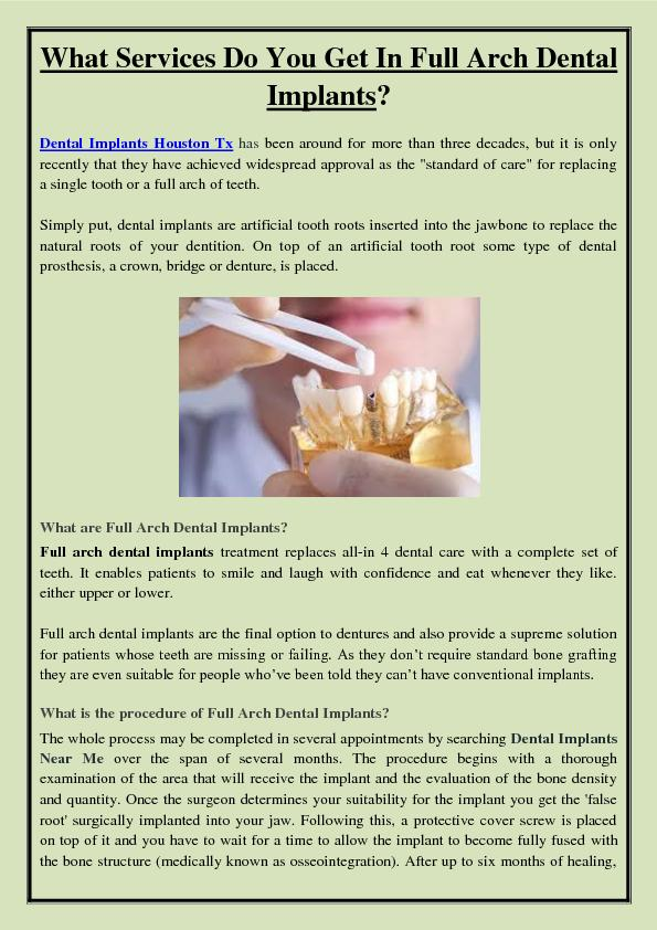 What Services Do You Get In Full Arch Dental Implants?