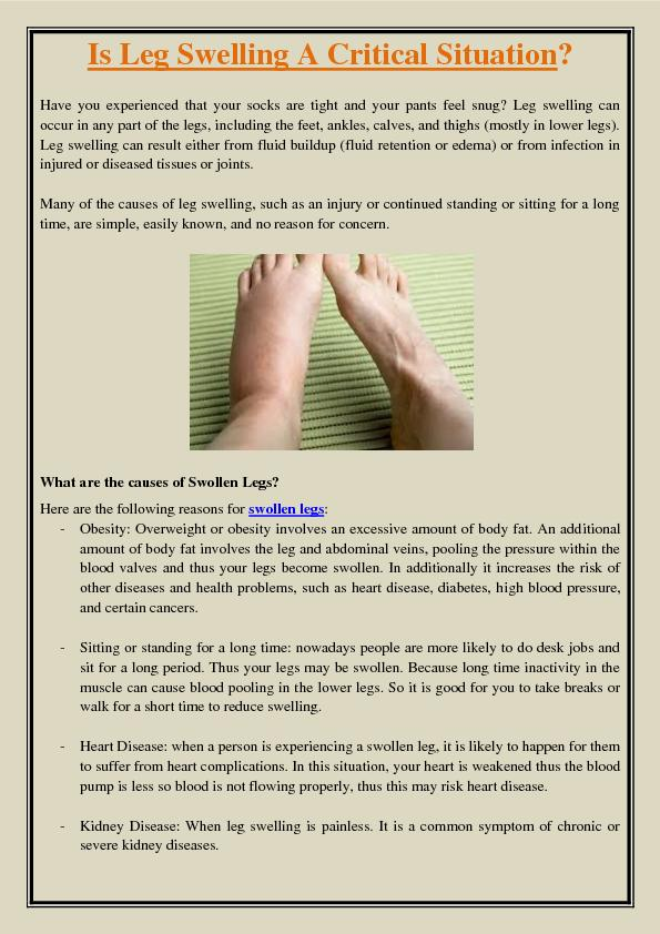 Is Leg Swelling A Critical Situation?