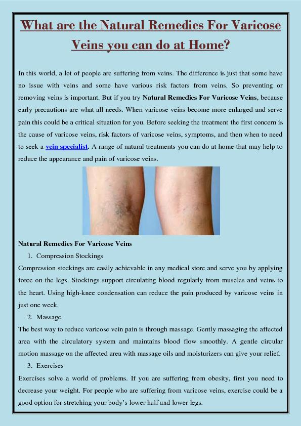 What are the Natural Remedies For Varicose Veins you can do at Home?