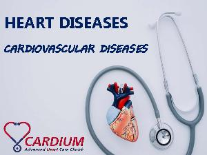 Heart Disease – Types, Causes, Symptoms and Treatments