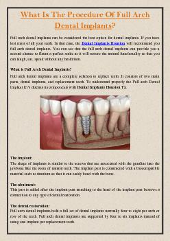 What Is The Procedure Of Full Arch Dental Implants?