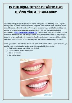 Is the drill of Teeth Whitening Giving you a Headache?