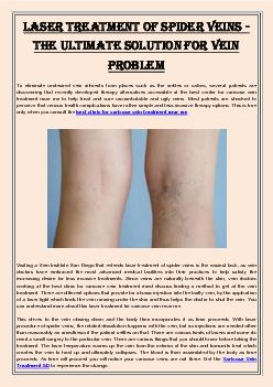 Laser Treatment of Spider Veins - The Ultimate Solution For Vein Problem