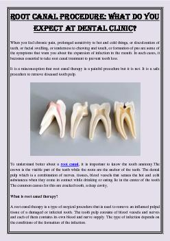 Root Canal Procedure: What Do you Expect at Dental Clinic?
