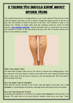 5 Things you should know about spider veins