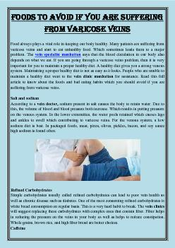 Foods to avoid if you are suffering from varicose veins