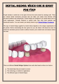 Dental Bridge: Which One Is Right For You?