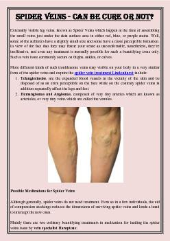 Spider Veins - Can Be Cure or Not?