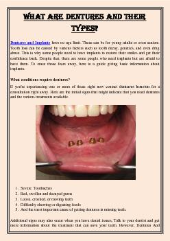 What are Dentures and Their Types?