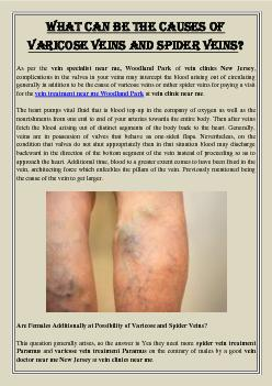 What Can Be The Causes of Varicose Veins and Spider Veins?