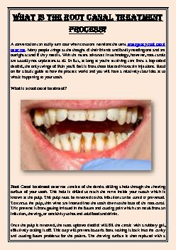 What is the Root Canal Treatment Process?