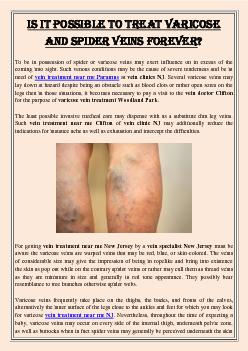 Is It Possible To Treat Varicose and Spider Veins Forever?