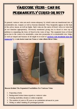 Varicose Veins - Can Be Permanently Cured Or Not?