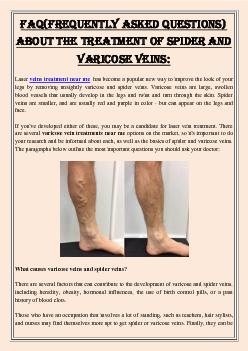 FAQ(Frequently Asked Questions) About The Treatment of Spider And Varicose Veins: