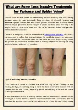 What are Some Less Invasive Treatments for Varicose and Spider Veins?