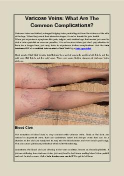 Varicose Veins What Are The Common Complications