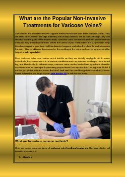 What are the Popular Non-Invasive Treatments for Varicose Veins?